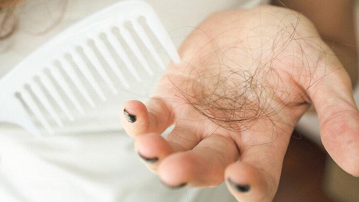 Frau verliert Haarbüschel, Haarausfall ist kein reines Männerproblem