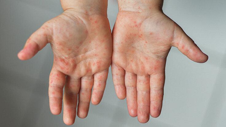 Ein nicht-juckender Ausschlag bildet sich auf den Händen bei der Hand-Fuß-Mund-Krankheit.