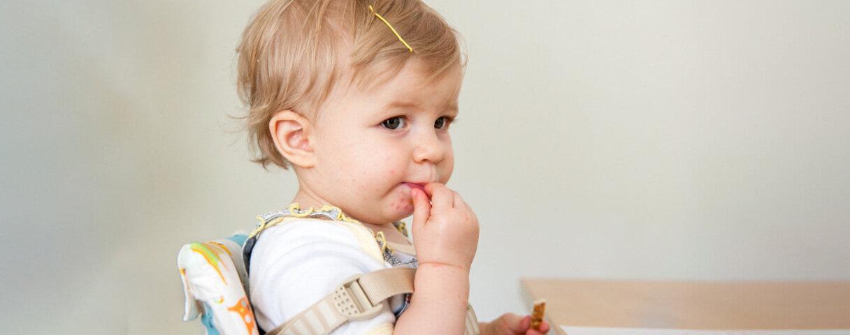 Ein Kind sitzt im Hochstuhl und isst – es hat einen Ausschlag um den Mund herum.