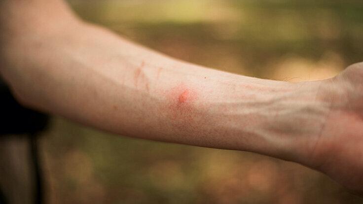 Jemand leidet an Insektengiftallergie und zeigt den zerstochenen Unterarm her.
