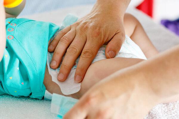 Baby wird frisch gewickelt -- wichtig bei einer Windeldermatitis.