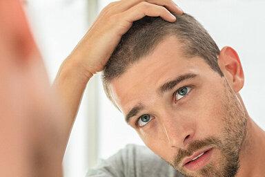 Mann mit Haarausfall, kann er ihn stoppen?