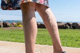 An dem Bein einer jungen Frau zieht sich eine Krampfader entlang.