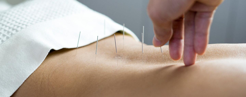 Arzt macht eine Akupunktur bei einer Patientin mit chronischen Rückenschmerzen.