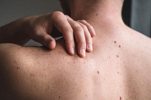 Mann untersucht seine Haut, um Hautkrebs rechtzeitig zu entdecken.