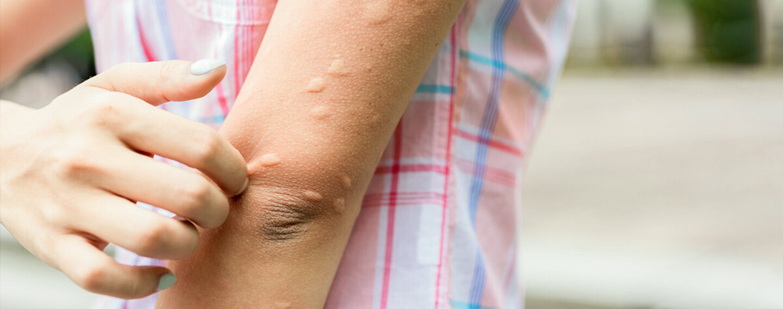 Frau juckt sich, weil sie Mückenstiche hat.