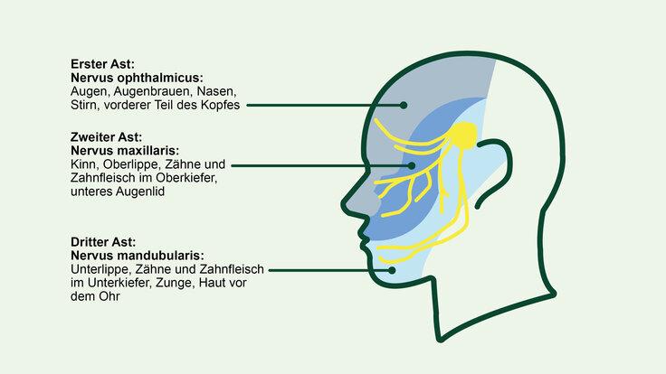 Grafik zur Veranschaulichung der Versorgungsgebiete des Trigeminus.